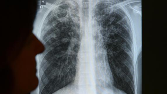 Kreis Augsburg: Tuberkulose im Kindergarten: Politiker wirft Behörden Versagen vor