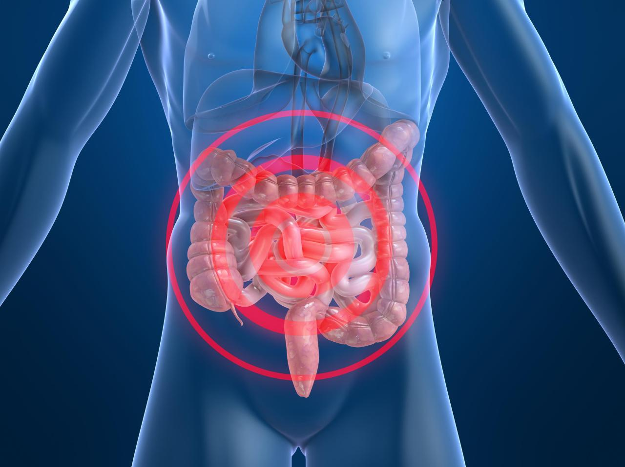 Darm-Probleme Würmer