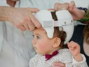Gesund und rund: Babys und Kinder: Helme bringen abgeflachte Schädel von Säuglingen in Form