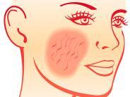 Gesundheitsseite - Haut: Damit die Haut nicht rot sieht