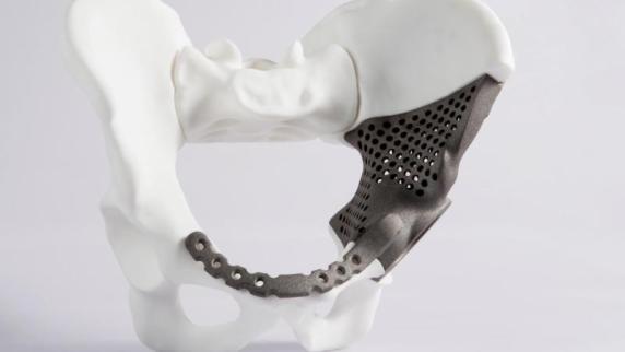 Zähne, Tabletten und Hörgeräte: Druckfrisch:Sind bald auch Organe aus 3D-Drucker möglich?