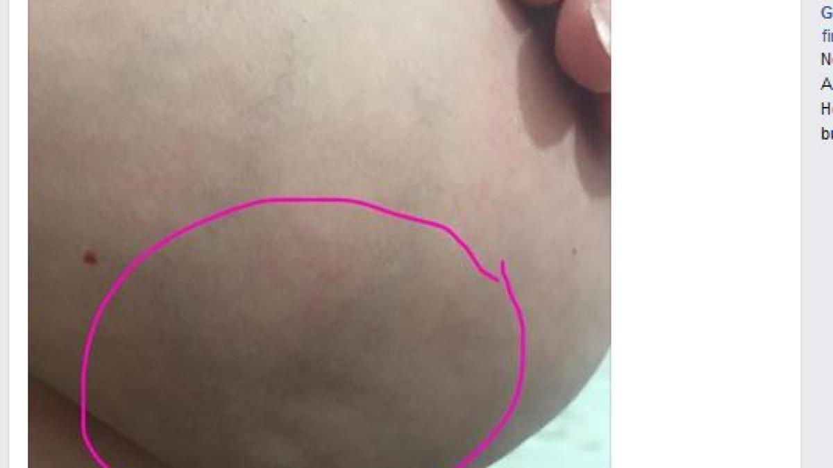 Implanty die Brüste im Alter