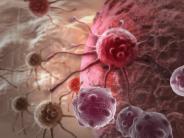 Interview: Tumor: Bringt diese neue Therapie den Durchbruch?