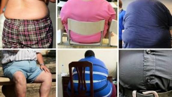 abdominale fettleibigkeit