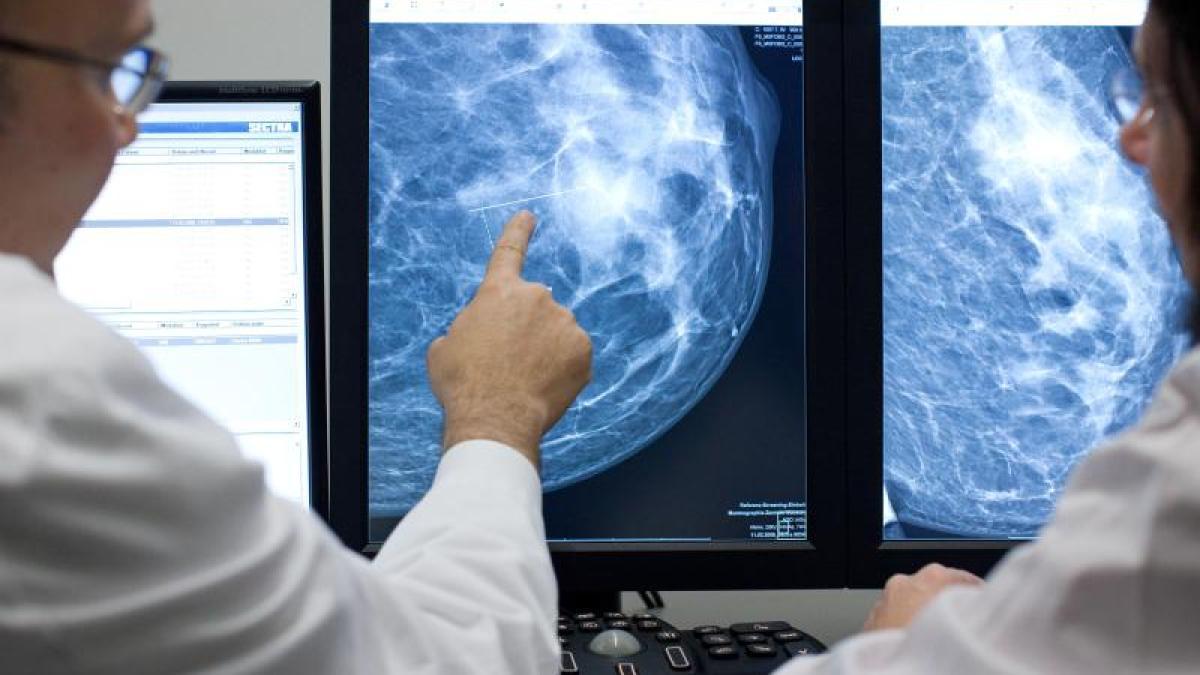 Die Behandlung von Brustkrebs nach Stadium