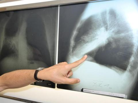 Darmkrebszellen lassen sich mit Duftstoff bremsen